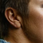 以為耳垂有皺紋是正常?!
