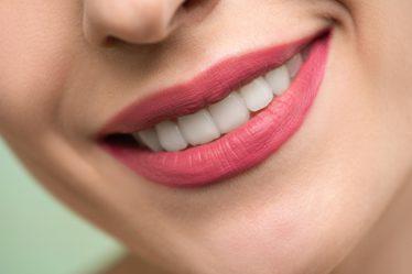 美白牙齒有妙法 10 分鐘讓黃牙瞬間變白牙